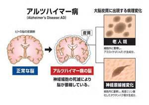 は 認知 症 と アルツハイマー 型
